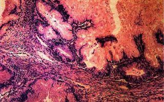 Диагностика и методы лечения опухолей разного вида