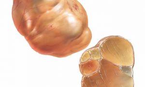Признаки и методы лечения муцинозной кисты