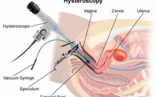 Могут ли возникать болевые ощущения после проведения гистероскопии