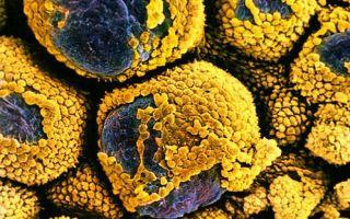 Диагностические методы и лечение резистентных яичников