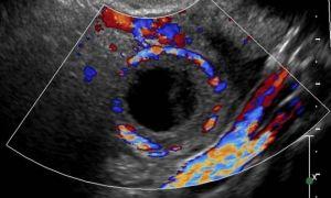 Характеристика и дополнительная диагностика при наличии анэхогенного новообразования в яичнике