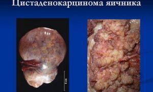Симптоматика и прогнозы при цистаденокарценоме на яичнике