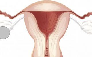 Виды и особенности развития гормонопродуцирующих образований яичников