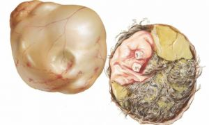 Причины развития и способы лечения тератомы яичника