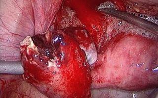 Диагностика и лечение при апоплексии яичника