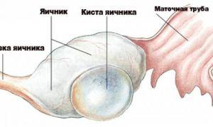 Что такое киста яичника, симптомы и причины возникновения, лечение