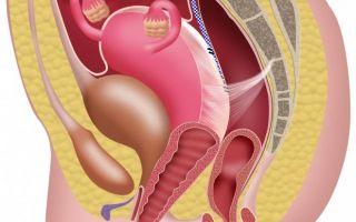 Причины опущения яичников и методы лечения патологии