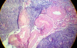 Причины развития и осложнения при гиалинозе белых тел и артерий яичников