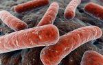 Развитие и лечение разных видов генитального туберкулеза