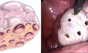 Особенности проведения диатермокаутеризации яичников