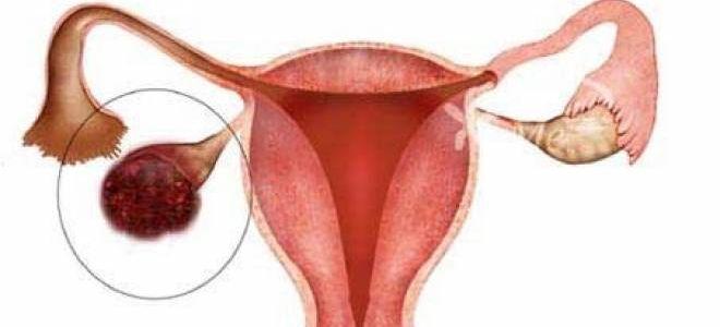 Особенности развития и возможные последствия при апоплексии яичника