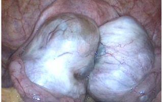 Двусторонние эндометриоидные кисты яичника или рак: как определить