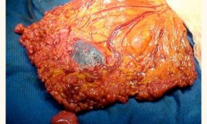 Причины развития и лечение канцероматоза брюшины при раке яичника
