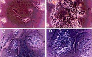 Особенности развития и виды опухолевидных образований яичников