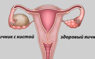 Причины развития и лечение гормонального новообразования