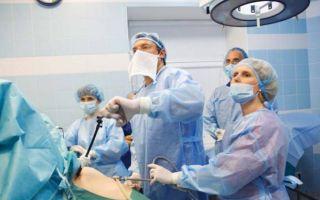 Можно ли забеременеть после проведенной лапароскопии кисты яичника