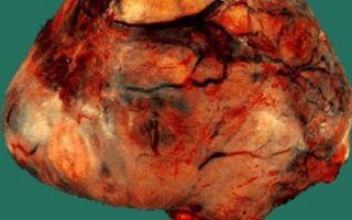 Симптомы и диагностика наличия андробластомы на яичнике