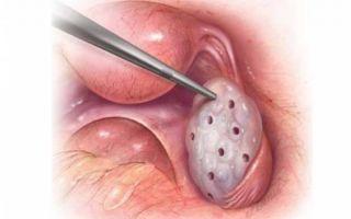 Зачем делают насечки на яичнике и как проводят эту операцию