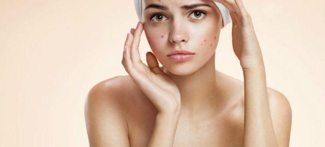 Как борются с проблемной кожей в салоне красоты?