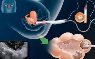 Подготовка и особенности проведения пункции яичника