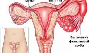 Какими бывают признаки воспаления яичников и как побороть болезнь