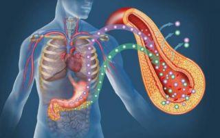 Инсулинорезистентность, как причина возникновения поликистоза яичников