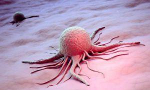 Перерождение доброкачественного образования яичника в раковую опухоль