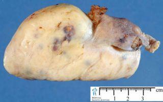 Причины развития и лечение фибромы на яичнике