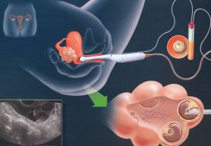 эко и эндометриоидная киста яичника