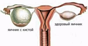 может ли киста яичника быть причиной задержки месячных