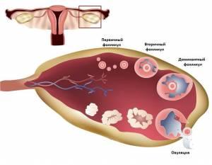 болит яичник во время месячных