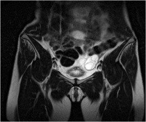 Чаще этот вида варикоза появляется у женщин в возрасте 25 — 45 лет