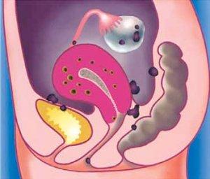 Поражение репродуктивной системы