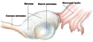 Симптомы и признаки кисты яичника у женщин: боли