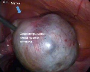 Что делать при диагнозе эндометриоидная киста яичника