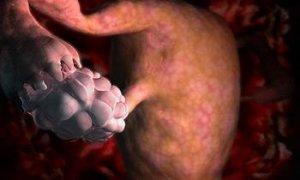 Как зачать ребенка при дисфункции яичников
