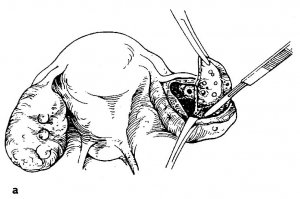 preimushhestva-elektrokauterizatsii