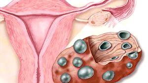 Мультифолликулярные яичники и беременность