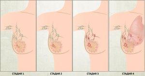 Особенности развития опухоли