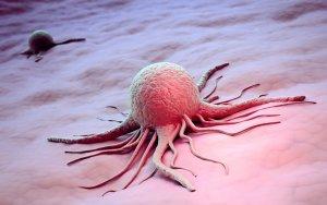 Поражение раковыми клетками