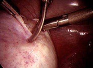 Проколы при операции