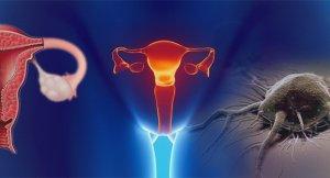 Особенности развития дисгерминомы