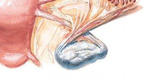 Изменение ножки кисты
