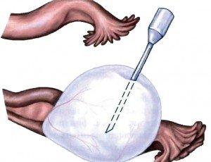 Диагностика при опухоли на яичнике