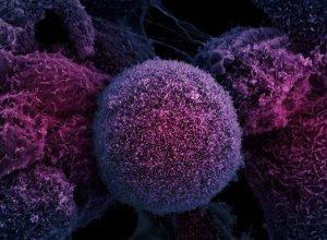 Почему начинает развиваться рак