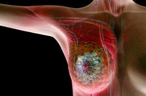 Рак груди после рака яичника