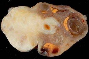 Один из видов фибромы