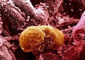 Временный орган при беременности